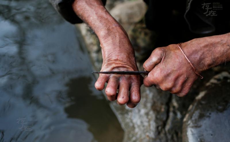 早晨,老阿达在用小刀剔去手上的硬皮。麻风病康复后,很多患者的四肢都会留下不同程度的畸变,而且失去知觉。老阿达用刀刮去手上的硬皮,然后再涂上凡士林,定期护理自己的双手。